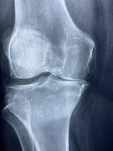 knee xray