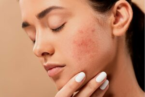 A woman with acne on her face